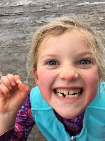 Of course she lost a tooth through it all